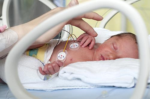 soin bébé prematuré